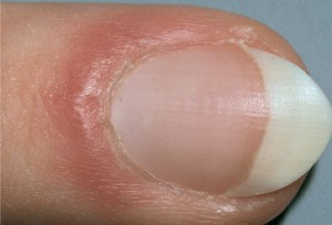 red cuticles