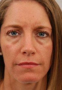 Ayurvedic Facial Diagnosis: What are the lines on your face